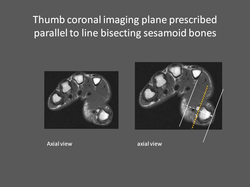 MRI Wrist How we do it - How is MRI Wrist done at Mater Dei Hospital