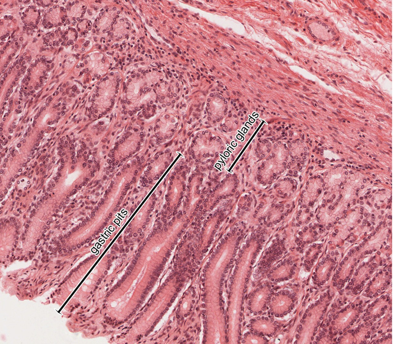 Histology of the Esophagus and Stomach